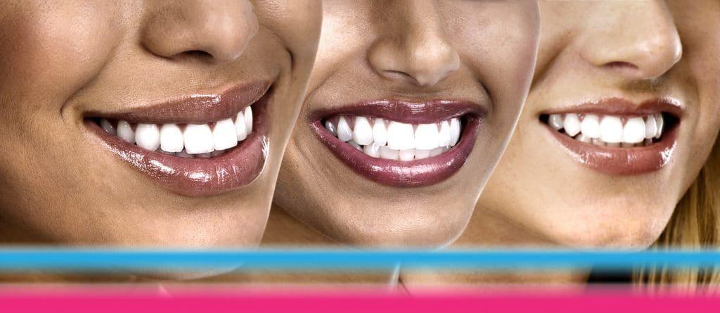 colore denti La Clinica Dentale Srl