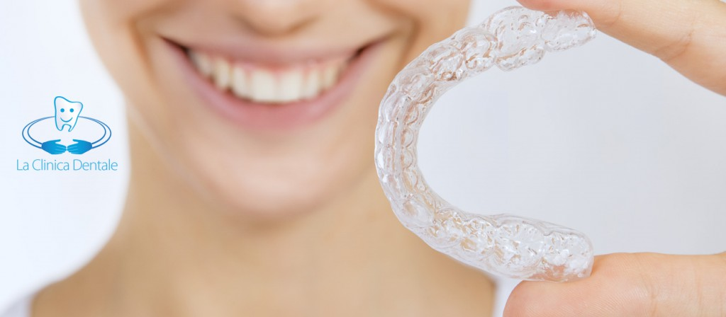 Allineatori Estetici - La Clinica Dentale Srl