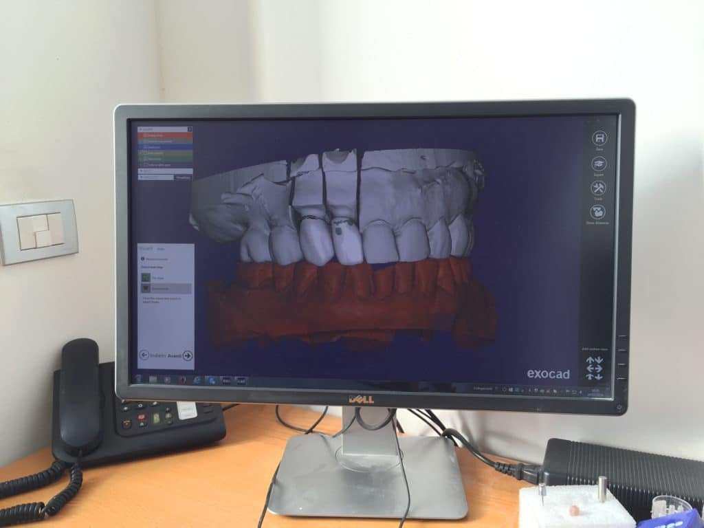 La Clinica Dentale srl - Gallarate Scan-3D 2