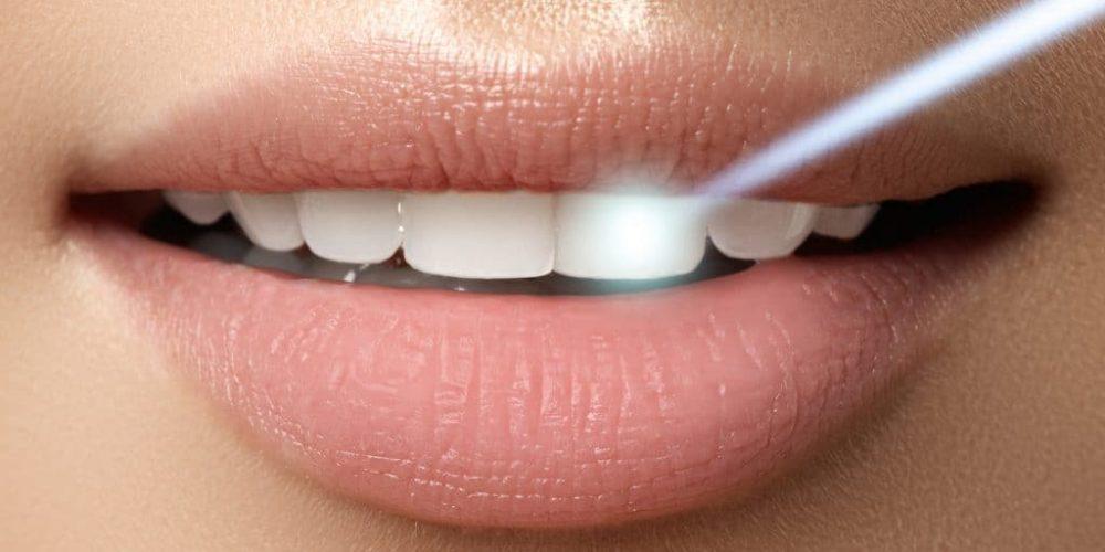 Cura laser della parodontite